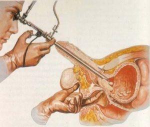 Prostat Kanseri Nedir? Belirtileri Ve Tedavi Yöntemleri Prostat Kanseri