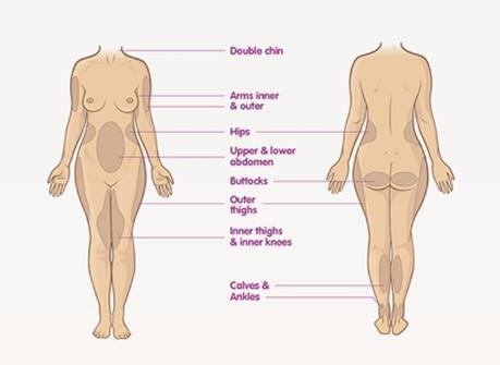 Vaser Liposuction Avantajları Nelerdir? 2019 06 28 14 16 38